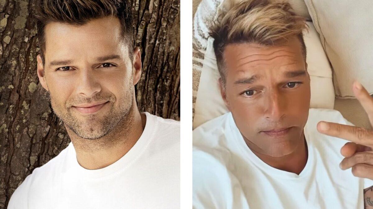Ricky Martin reaparece irreconocible tras someterse a un retoque estético